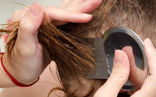 Head Lice – Symptoms, Causes, Treatment and Prevention